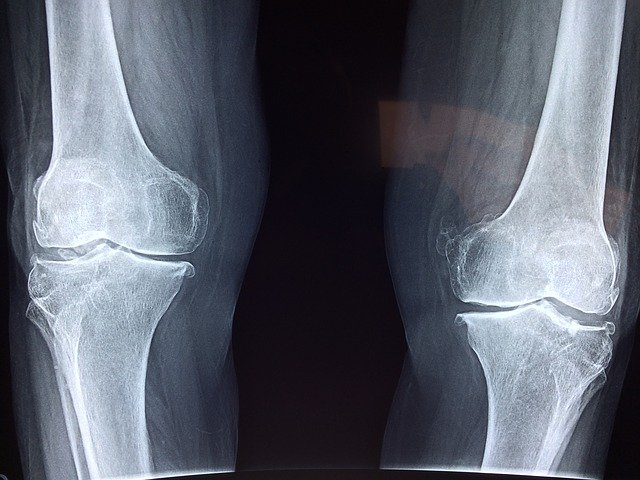 Failed knee replacement x-ray.